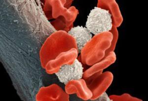 Причины лейкоза в крови
