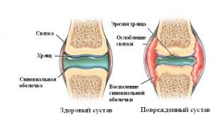 Что такое ревматоидный артрит у детей