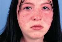 Красная волчанка у детей и ее лечение