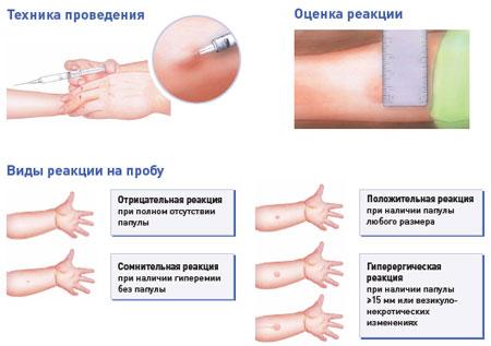 подготовка к прививке манту в годик
