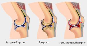 Причины ревматоидного артрита у ребенка