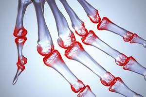 Признаки ревматоидного артрита у школьников