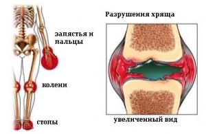 Симптомы детского ревматоидного артрита