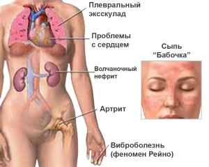 Симптомы системной красной волчанки