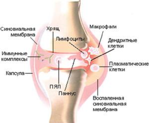 Схема воспаления сустава