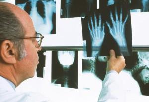Способы лечения ревматоидного артрита